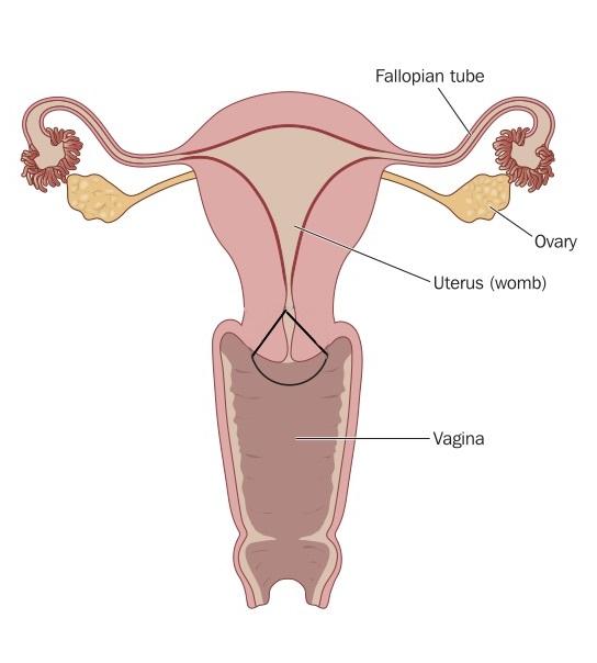 Hpv infektion gebarmutterhals, HPV: Preventing Cervical Cancer tricou parazitii dama