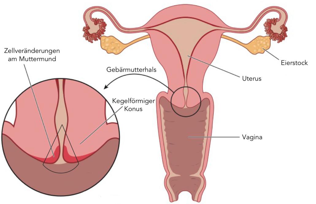 Gebärmutterhalskrebs und Gebärmutter(-körper-) krebs – Was ist der ...
