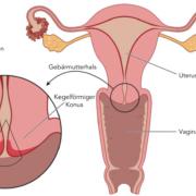 Bei Gebärmutterhalskrebs wird oft eine Konisation durchgeführt - Gebärmutterkrebs ist in der Gebärmutter selbst lokalisiert.