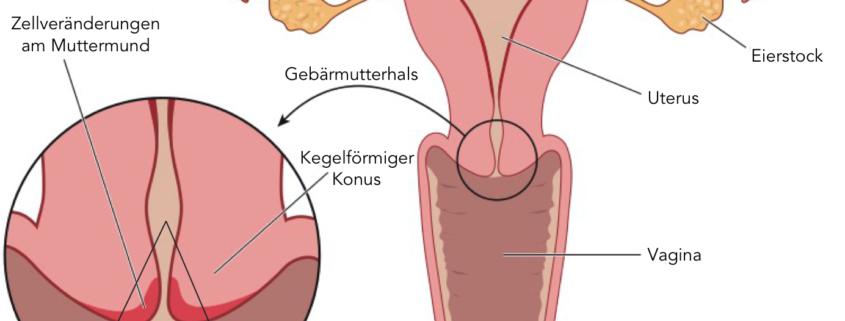 Hpv fertőzés gebarmutterhals, A HPV (humán papillomavírus) fertőzés tünetei, kezelése